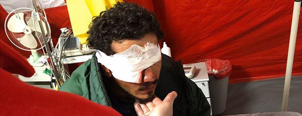 Yunanistan'ın attığı plastik mermi isabet eden sığınmacıyı gözünden etti