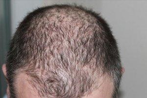 Kovid-19 sonrasında saç dökülmelerinde artış görülüyor